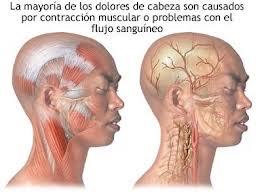 Dolor_cabeza_botox