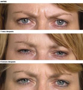 Arrugas Entrecejo Botox