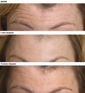 arrugas frente botox